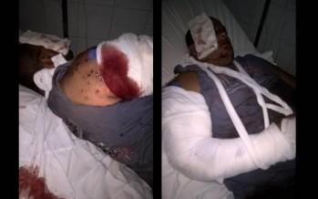 Un chofer de la Patrulla Comunal fue violentamente atacado en Virreyes