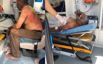 Cuatro trabajadores de Ecocarnes fueron hospitalizados por un derrame de amoníaco